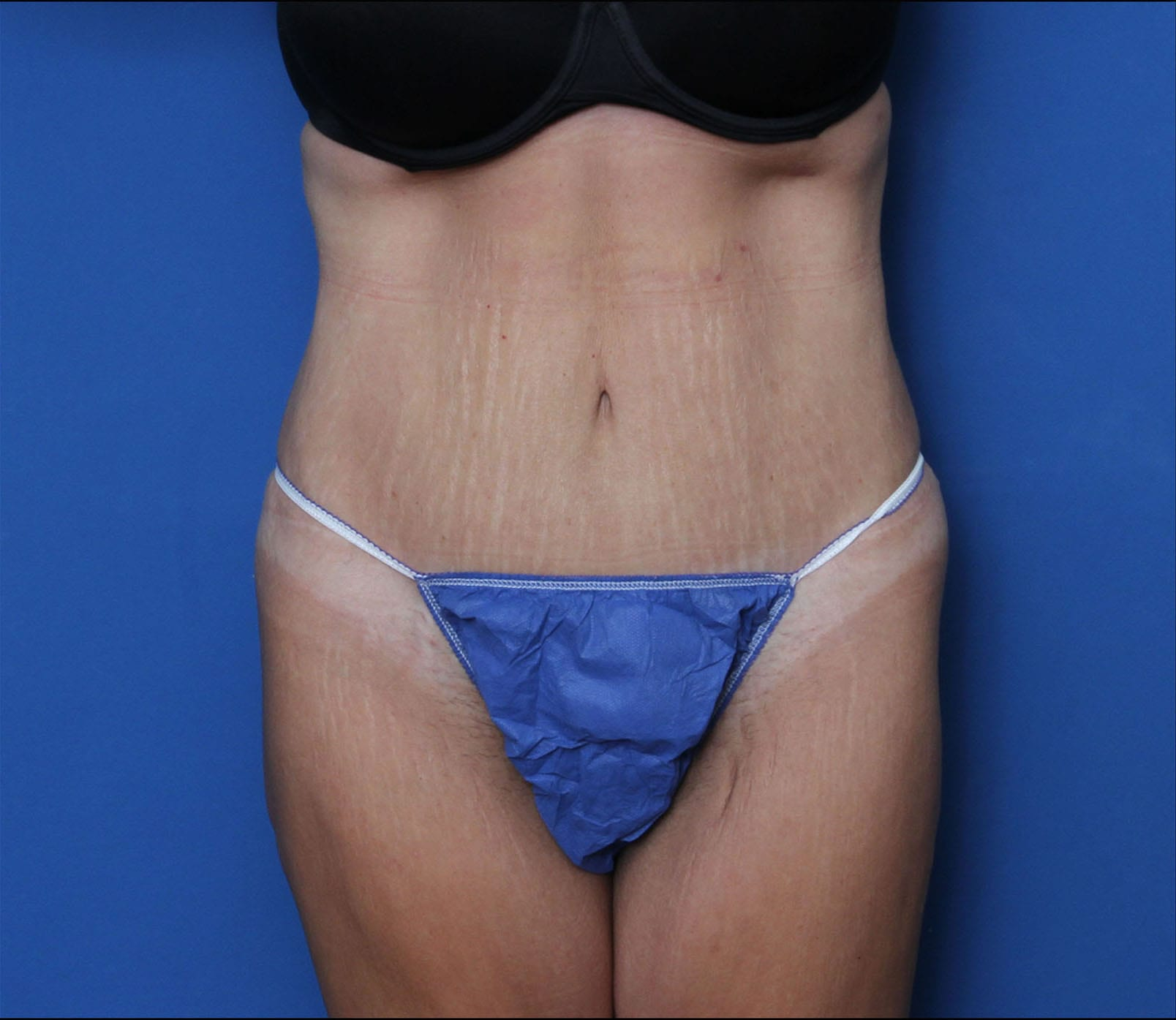 Tummy Tuck Patient Photo - Case 9773 - after view