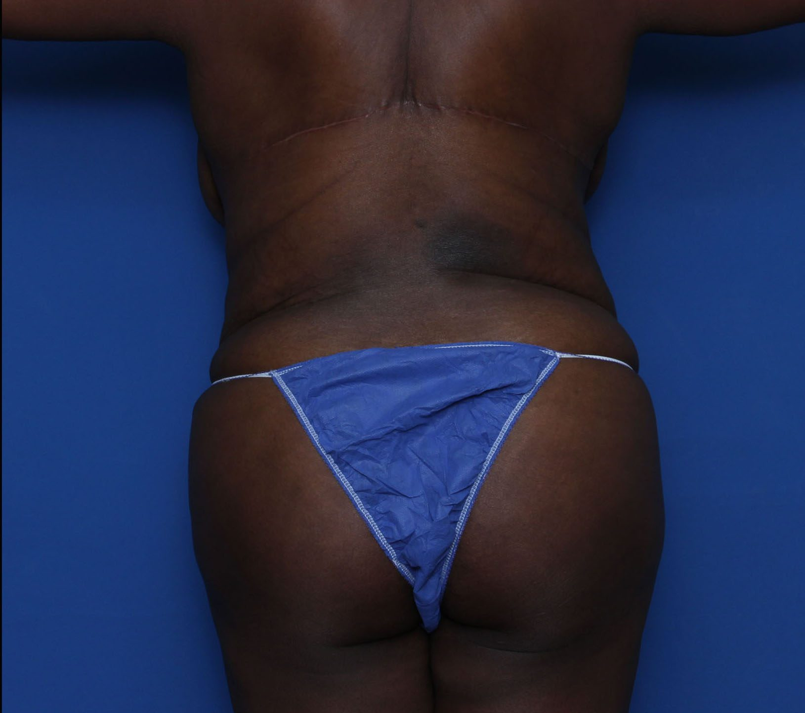 Tummy Tuck Patient Photo - Case 6962 - after view-3
