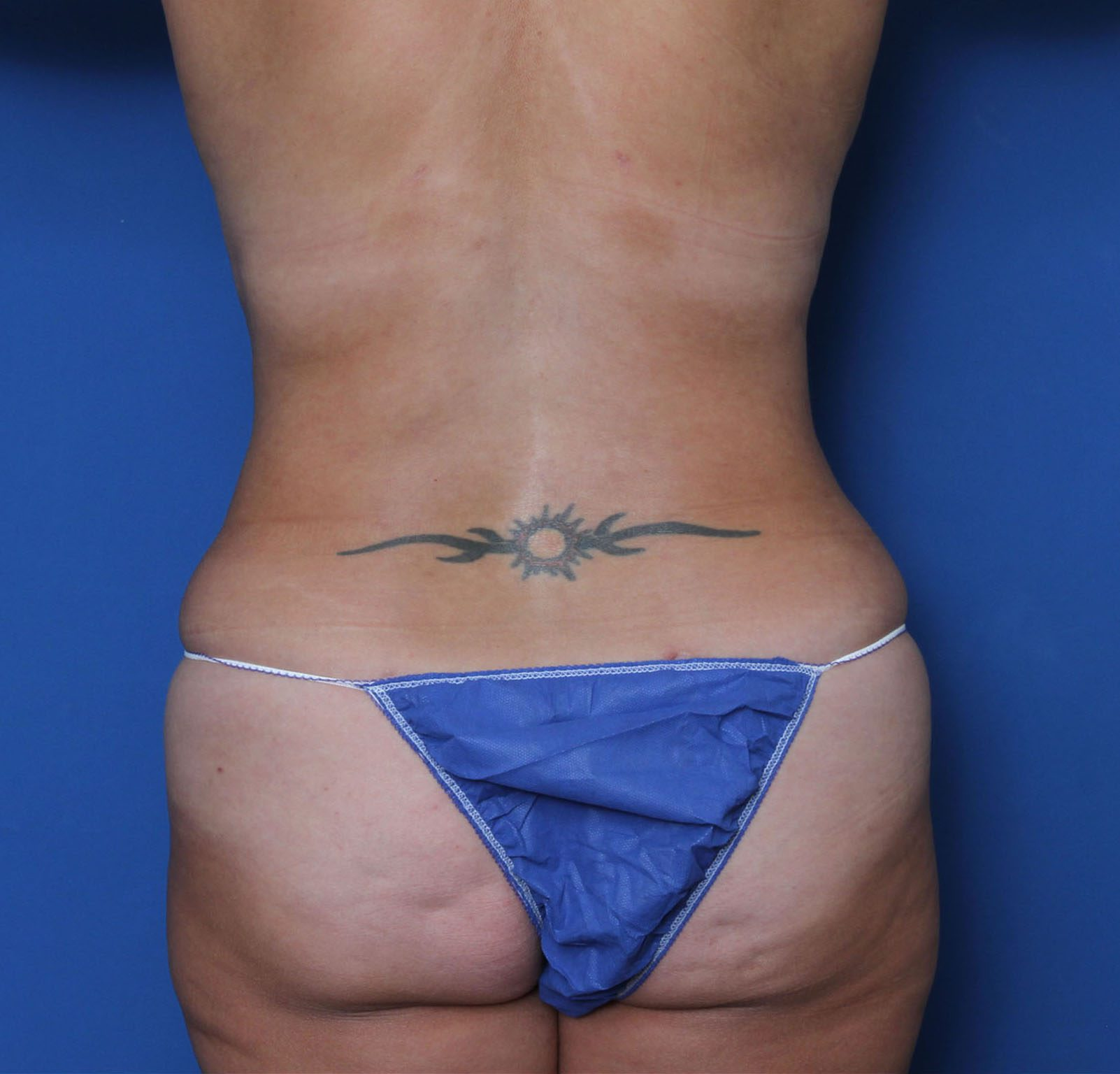 Tummy Tuck Patient Photo - Case 6964 - after view-3
