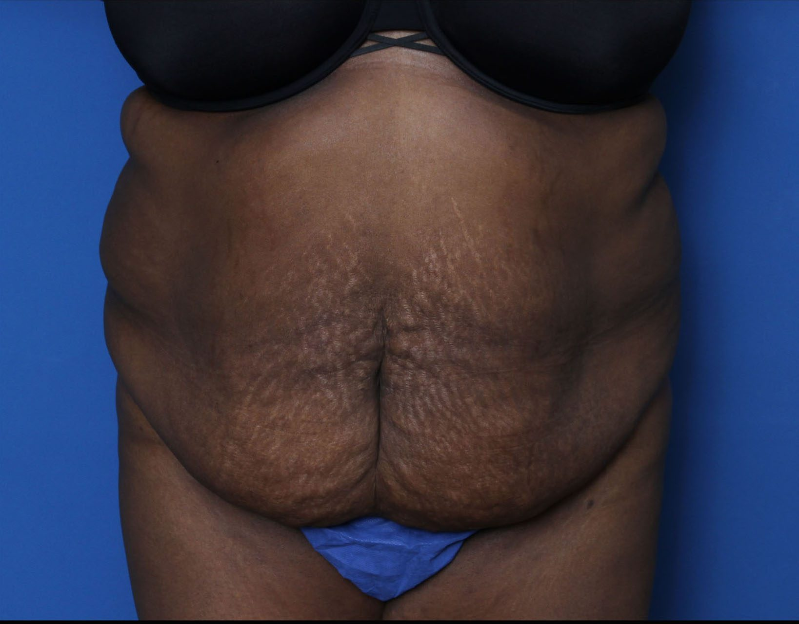 Tummy Tuck Patient Photo - Case 6962 - before view-